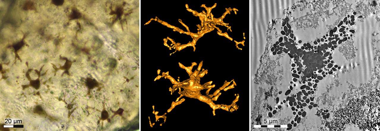 Ca. 180 Millionen Jahre alte Pigmentzellen aus der fossilen Haut des Ichthyosauriers. Links: Lichtmikroskopische Aufnahme der dunkel erscheinenden Pigmentzellen (Melanophoren) . Mitte:  Synchrotron-Röntgen-Tomographie  (SRXTM) zweier fossiler Melanophoren mit den typischen lang  verzweigten Fortsätzen. Rechts: Transmissions-Elektronenmikroskopische Aufnahme (TEM) einer Melanophore. Die dunklen, körnigen Strukturen (Melanosome) enthalten noch den dunklen Farbstoff Melanin.