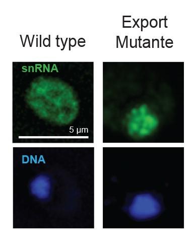 """Nachweis der zytoplasmatischen snRNA in normalen (Wild type) Zellen im Cytoplasma und das """"Festhalten"""" diesen snRNAs in genetisch veränderten Zellen."""