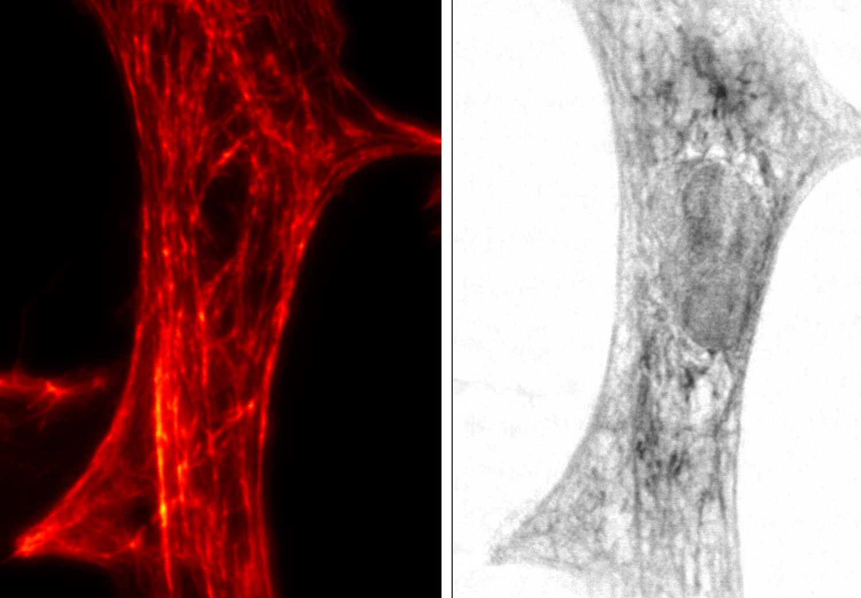 STED-Aufnahme (links) und Röntgen-holographische Abbildung (rechts) derselben Herzmuskelzelle einer Ratte.