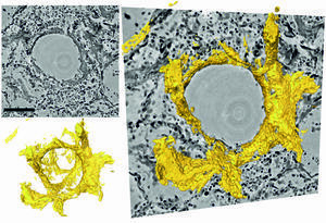 Sections through the three-dimensional reconstruction volume (upper left, grey) around a pulmonary alveolus with hyaline membrane (lower left, yellow). On the right, the images are superimposed. In the centre is the air bubble (alveolus). The electron density is represented by different shades of grey. On the inside of the air bubble is a layer of proteins and dead cell residues, the