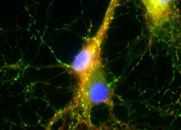 Synapsen in neuronalen Zellkulturen, gefärbt mit im SFB 1286 neu entwickelten Methoden.